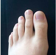 Oli essenziali da un fungo di risposte di unghie